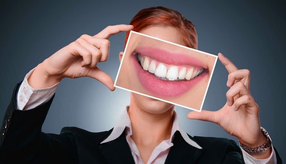 Avoir enfin des dents blanches et un sourire parfait !